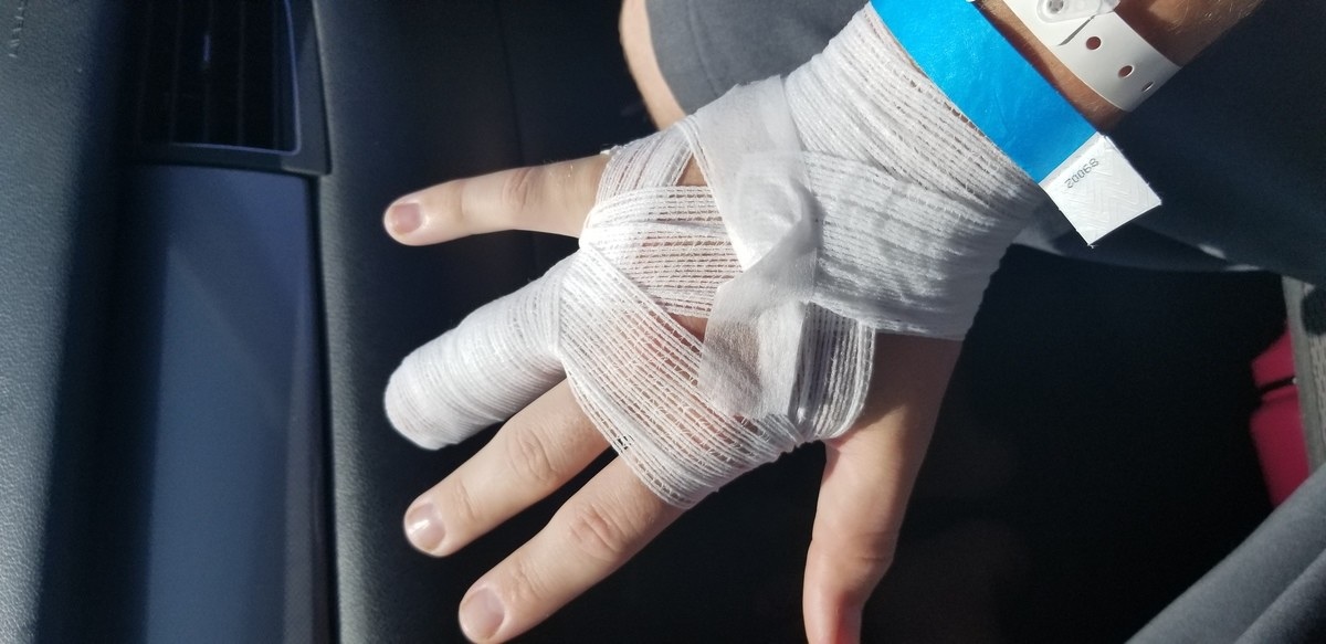 I lived . broken yo. Came back from Canada with only two infected fingers. Broke my hand the day after we got back in the states. Other than that had a blast ho