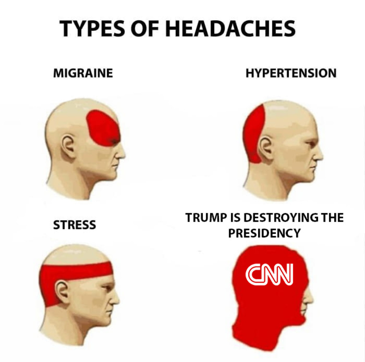 Must hurt. . TYPES; OF HEADACHES MIGRAINE TRUMP IS THE STRESS PRESIDENCY. Headaches of a god..