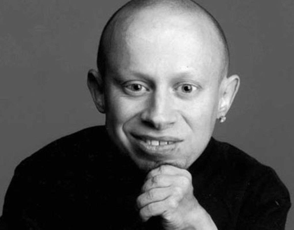 RIP Verne Troyer. Verne Troyer dies at the age of 49. The cause of death is unknown at this time but he has been in rehab multiple times for alcohol abuse. Rest